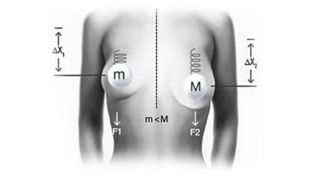 Еффект ваги B - Lite® Легкі імпланти